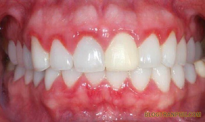 Biểu hiện bất thường sau khi bọc răng sứ NGUY HIỂM bạn nên biết