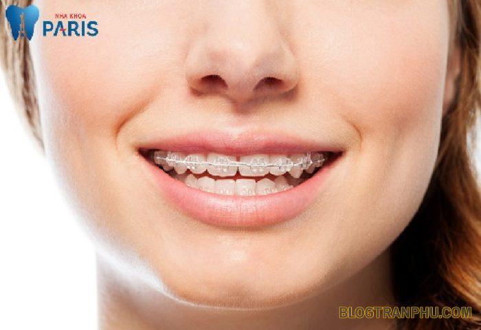 Chỉnh nha có cần nhổ răng không?