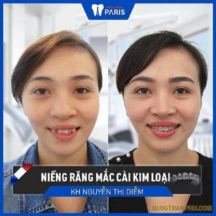 Chị Nguyễn Thị Diễm